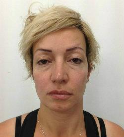 hollow cheeks tired look before restylane dermal filler 250